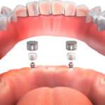 Carga inmediata en implantes dentales