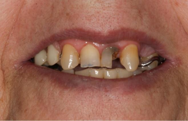 Caso real implante carga inmediata Clínica Dentisalut