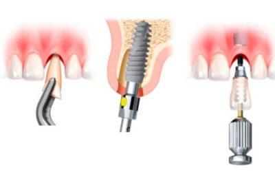 Última tecnología en implantes dentales