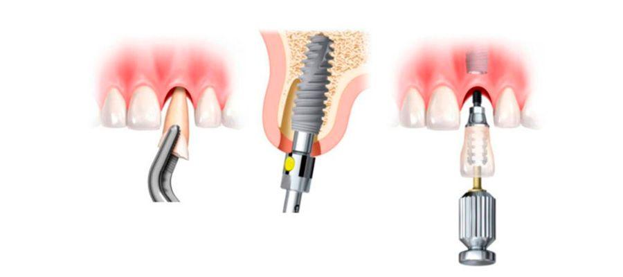Nuevas técnicas en implantes dentales