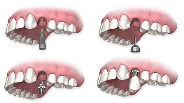 Tipos implantes Carga Inmediata