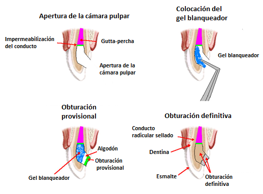 Proceso blanqueamiento dental interno