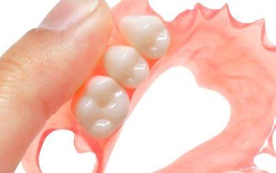 Valplast, prótesis dentales removibles sin ganchos