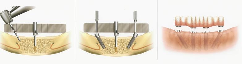 Colocación implantes dentales