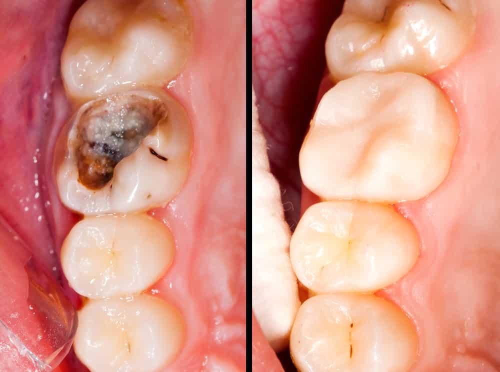 reconstrucción dental con composite