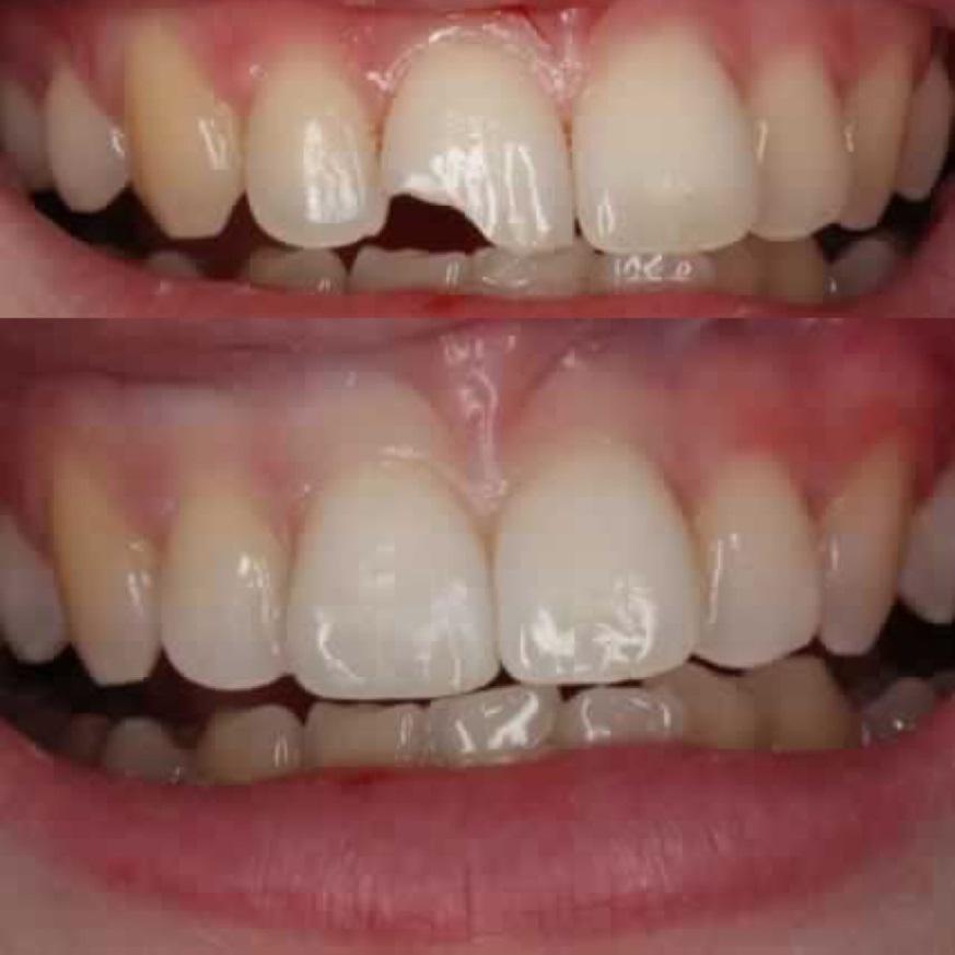 Mejor opción para reconstruir una pieza dental