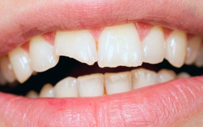 ¿Qué es la reconstrucción dental?