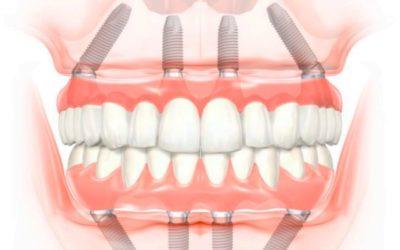 Reponer toda la boca con implantes All on 4