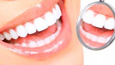 ¿Cómo solucionar la falta de un diente?
